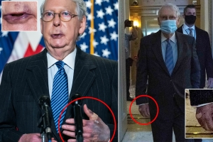 McConnell says all is well despite bad bruises on his hands and lips